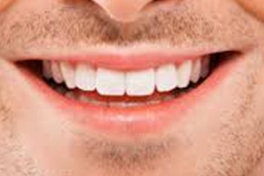 Quinze alimentos que deixam dentes mais brancos e fortes